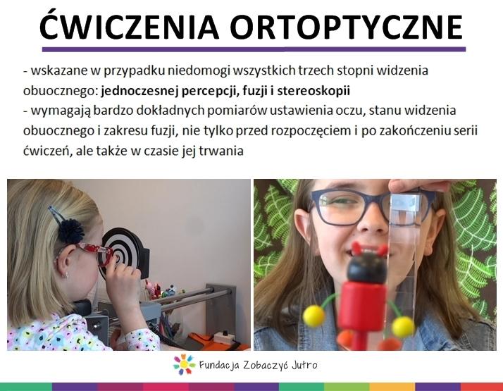 ćwiczenia ortoptyczne dziecko ma zeza