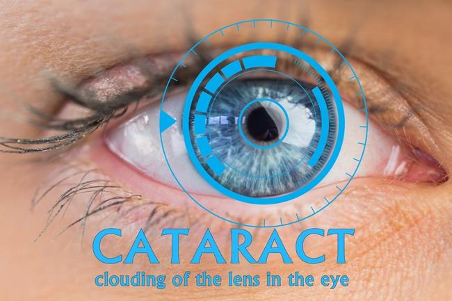 eyesight-cataract-reasons-symptoms